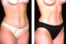 Tummy Tuck and Breast Augmentation (Armpit Incision)