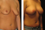 Breast Augmentation (Nipple Incision) Mentor Saline Implants 350 cc