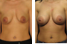Breast Augmentation (Nipple Incision) Mentor Memory Gel Implants R:325cc and L:350cc