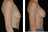 Breast Augmentation (Nipple Incision) Mentor Saline Implants 400cc