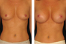 Breast Augmentation (Armpit Incision) Mentor Memory Gel Implants 325cc