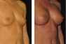 Breast Augmentation (Armpit Incision) Mentor Memory Gel Implants 375cc