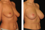 Breast Augmentation (Armpit Incision) Mentor Memory Gel Implants 375 cc