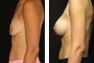 Breast Augmentation (Nipple Incision), Saline Implants 350cc