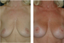 Breast Augmentation (Armpit Incision) Mentor Saline Implants 425cc