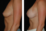 Breast Augmentaiton (Nipple Incision) Mentor Saline Implants 325cc