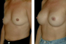 Breast Augmentation (Armpit Incision) Mentor Saline Implants 325cc