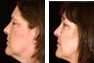 Upper and Lower Eyelid Surgery, Liposuction under chin