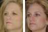 Endoscopic Browlift, Upper and Lower Eyelid Surgery