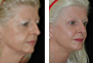 Facelift, Endoscopic Browlift, Upper and Lower Eyelid Surgery, Fat Grafting