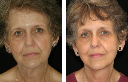 best 7 Cosmetic Surgery Center Lexington Ky